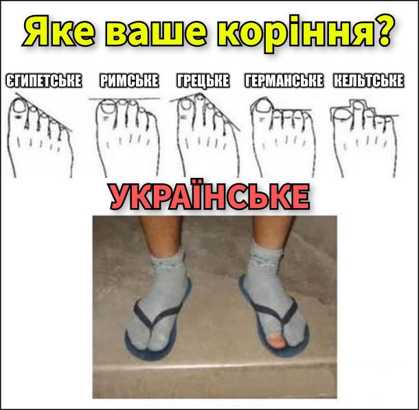 Яке ваше коріння. Тест за вашими пальцями на ногах. Є варіанти: єгипетське, римське, грецьке, германське, кельтське і українське (на фото ноги в шкарпетках, наверх в'єтнамки, на одній шкарпетці дірка на великому пальці)