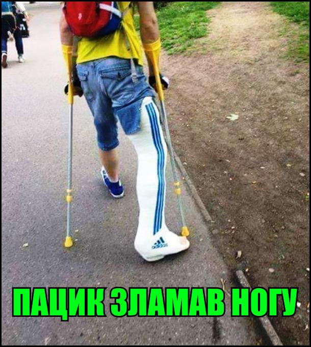 Пацик зламав ногу. На гіпсі три полоски і логотип адідас (adidas)