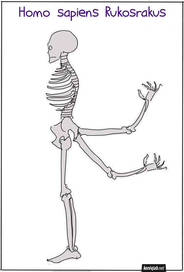 Homo sapiens Rukosrakus. Скелет людини, в якої руки ростуть зі сраки