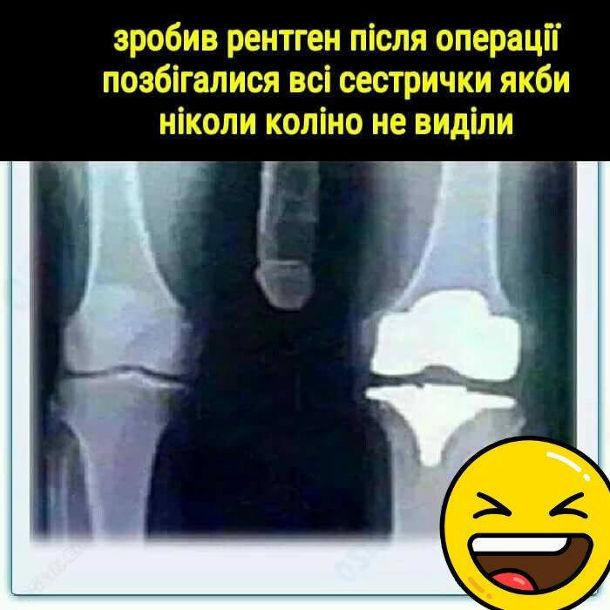 Смішний рентген. Зробив рентген після операції, позбігалися всі сестрички якби ніколи коліно не виділи. На рентгені видно пеніс майже до колін
